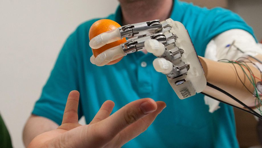 My-Hand-Bionic-hand-by-Institute-of-Biorobotics_2