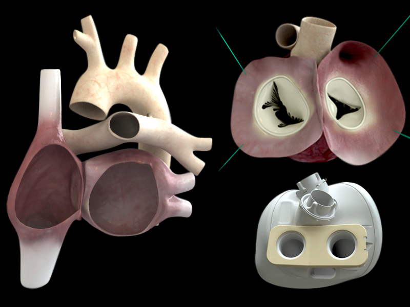 Smart-Artificial-Heart-Carmat
