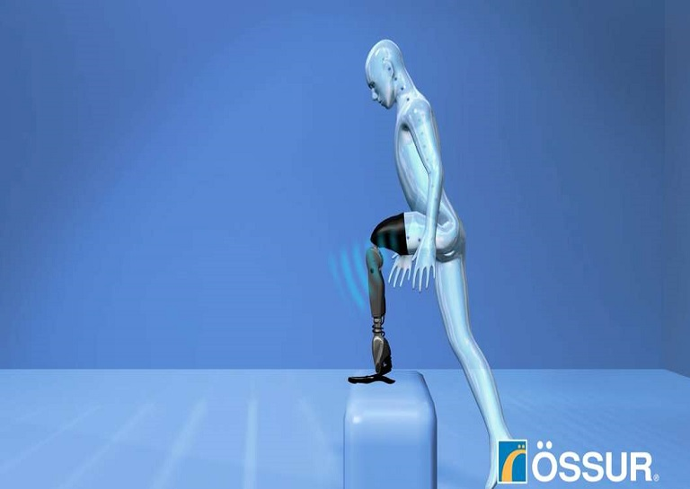 Mind-Controlled-Bionic-Limb-For-Amputees-2