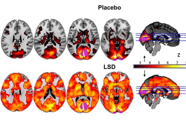 lsd-brain-scan